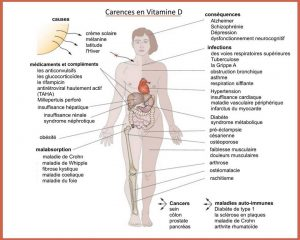 Carences en Vitamine D